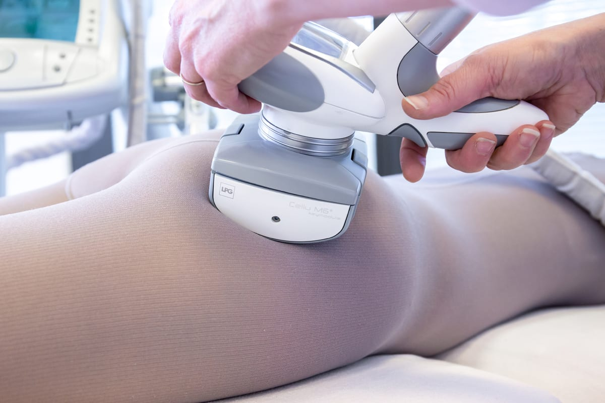 Cellulite LPG behandeling effectief