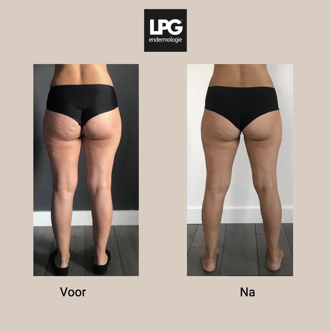 LPG behandeling voor en na cellulite
